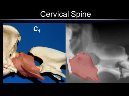 Cervical Spine C1C1. C2C2 Structures of C 1 Lateral Vertebral Foramen.