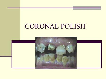 CORONAL POLISH. Coronal Polish Not a Prophylaxis Part of a prophy. NO scaling! Tartar / Calculus Hygienist / Doctor Coronal polish: Is the removal of.