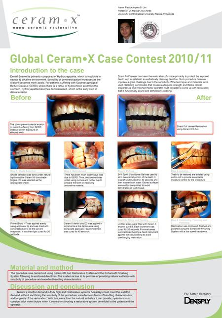 Introduction to the case Before After Material and method Discussion and conclusion Dental Enamel is primarily composed of Hydroxyappatite, which is insoluble.