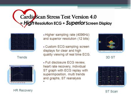Trends3D ST HR Recovery ST Scan ● Higher sampling rate (4096Hz) and superior resolution (12 bits) ● Custom ECG sampling screen displays for clear and high.