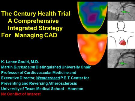 The Century Health Trial A Comprehensive Integrated Strategy For Managing CAD K. Lance Gould, M.D. Martin Bucksbaum Distinguished University Chair, Professor.