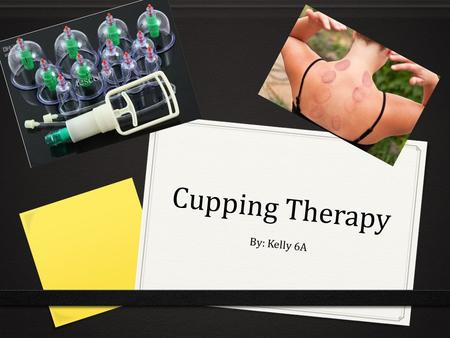Cupping Therapy By: Kelly 6A. History 0 Cupping Therapy is a form of alternative medicine which uses cups. The cups can be made out of glass, bamboo and.