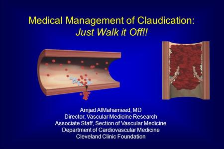 Medical Management of Claudication: Just Walk it Off!!