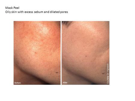 Before After Courtesy Dr. Vigneron Mask Peel Oily skin with excess sebum and dilated pores.