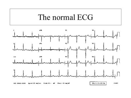 The normal ECG. Normal sinus rhythm –Each p wave followed by a QRS –Normal P waves –P wave rate 60-100bpm.