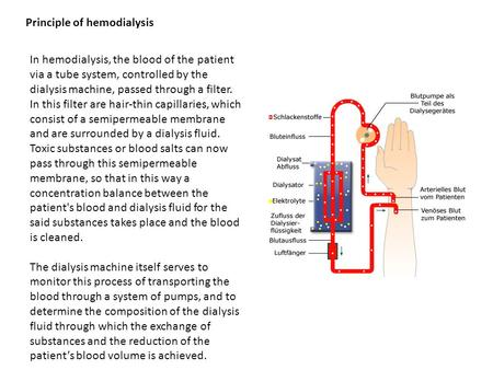 Principle of hemodialysis In hemodialysis, the blood of the patient via a tube system, controlled by the dialysis machine, passed through a filter. In.