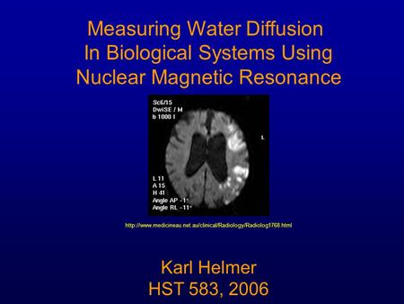 Measuring Water Diffusion In Biological Systems Using Nuclear Magnetic Resonance Karl Helmer HST 583, 2006