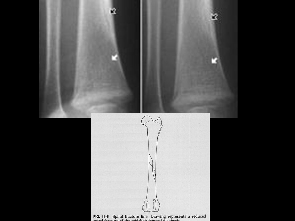 Skeletal Manifestations Vertebral fractures- occur from severe hyperflexation Vertebral fractures- occur from severe hyperflexation Facial, sternal, scapular, pelvic Facial, sternal, scapular, pelvic High force High force Highly suggestive Highly suggestive