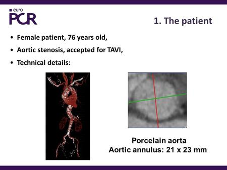 1. The patient Female patient, 76 years old, Aortic stenosis, accepted for TAVI, Technical details: Porcelain aorta Aortic annulus: 21 x 23 mm.