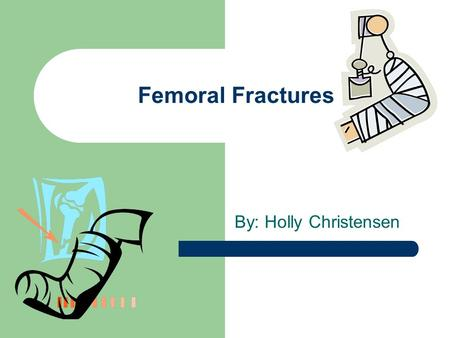 Femoral Fractures By: Holly Christensen. What is a Femoral Fracture When the femur bone is broken The femur (also known as the thigh bone) extends from.