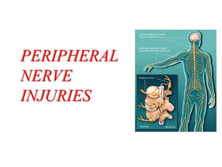 PERIPHERAL NERVE INJURIES. Classification of nerve injury.