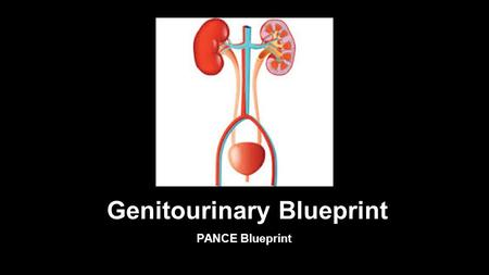 Genitourinary Blueprint PANCE Blueprint. GU Tract Conditions Benign Prostatic Hyperplasia (BPH) Benign Prostatic Hypertrophy (BPH) presents with polyuria,