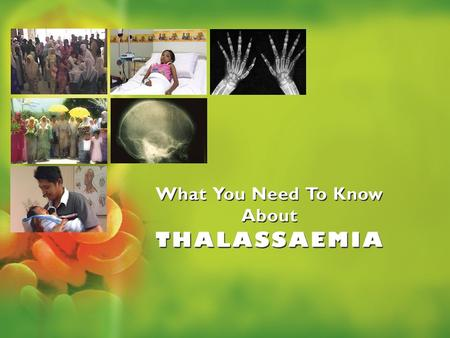 Thalassaemia is a hereditary disorder It can be inherited from both the parents It can affects males and female alike WHAT IS THALASSAEMIA? WHAT IS.