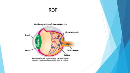 ROP. What is ROP  Retinopathy of prematurity (ROP) is a potentially blinding eye disorder that primarily affects premature infants weighing about 2¾.