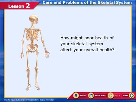 Lesson 2 How might poor health of your skeletal system affect your overall health? Care and Problems of the Skeletal System.