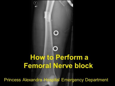 How to Perform a Femoral Nerve block Princess Alexandra Hospital Emergency Department.