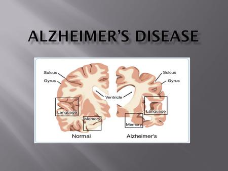 Alzheimer's disease is a chronic, progressive, degenerative disease that accounts for 60% of the dementias occurring in people older than 65 years. Alzheimer's.