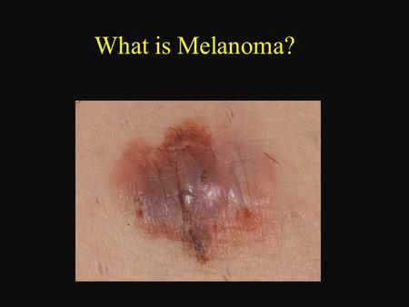 What is Melanoma?. Melanoma is the deadliest form of skin cancer  Melanoma originates in the cells of the skin that make pigment, called melanocytes.