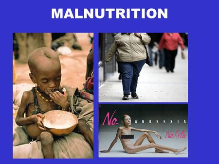 MALNUTRITION. Malnutrition When the body does not get the right amount of nutrients. The physical function of an individual is impaired to the point where.