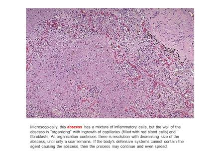 Microscopically, this abscess has a mixture of inflammatory cells, but the wall of the abscess is organizing with ingrowth of capillaries (filled with.