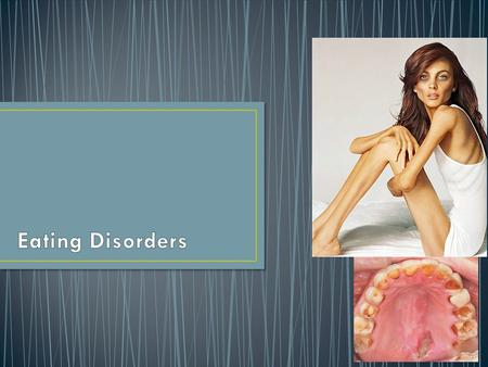 Generally, an Eating Disorder any of a range of psychological disorders characterized by abnormal eating habits and behaviors. An eating disorder is when.