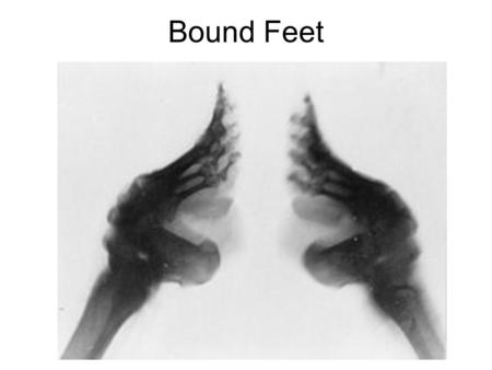 Bound Feet. Tang Song Tang Dynasty Buddhism raised the status of women plus nomadic pastoralist influence allowed more freedom. Neo-Confucianism was.