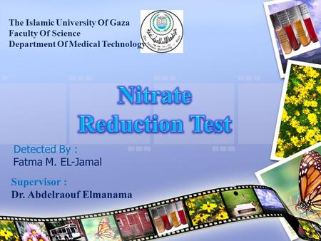 The Islamic University Of Gaza Faculty Of Science Department Of Medical Technology Detected By : Fatma M. EL-Jamal Supervisor : Dr. Abdelraouf Elmanama.