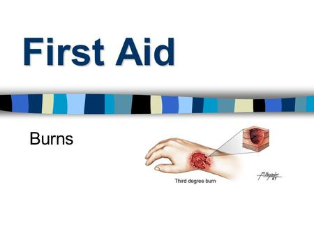First Aid Burns. Burns Classified as either Thermal (Heat) Chemical Electrical.