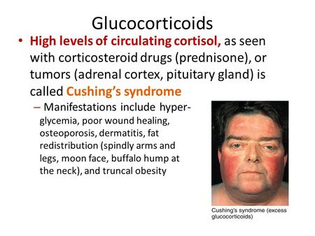 Glucocorticoids High levels of circulating cortisol, as seen with corticosteroid drugs (prednisone), or tumors (adrenal cortex, pituitary gland) is called.