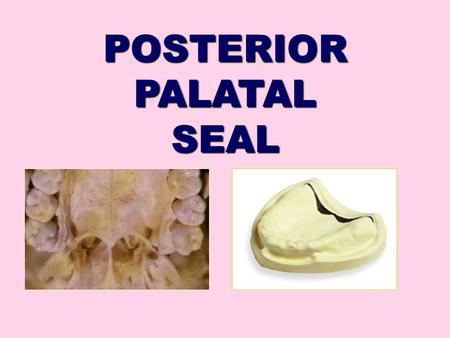 POSTERIOR PALATAL SEAL. CONTENTS Introduction Definition Purpose Parts of PPS Vibrating Lines Classification of PPS Techniques of recording PPS Failures.