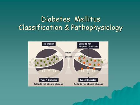 Diabetes Mellitus Classification & Pathophysiology.