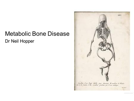 Metabolic Bone Disease Dr Neil Hopper. Metabolic Bone Disease in Children Rickets Osteogenesis Imperfecta Other –Renal osteodystrophy –Non-OI osteoporosis.