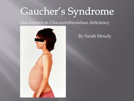 By Sarah Moudy Also known as Glucocerebrosidase deficiency.