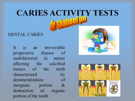 CARIES ACTIVITY TESTS DENTAL CARIES It is an irreversible progressive disease of multifactorial in nature affecting the calcified tissues of the teeth.