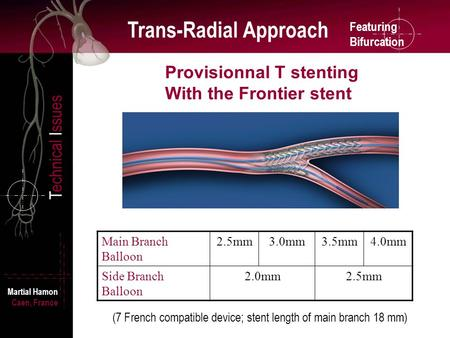 Featuring Bifurcation Trans-Radial Approach Technical Issues Martial Hamon Caen, France Provisionnal T stenting With the Frontier stent Main Branch Balloon.