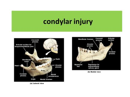 Condylar injury. Mental foramen for V3 sensory branch Coronoid process of mandible Mandibular notch neck condyle Mandibular fossa Articular emminence.