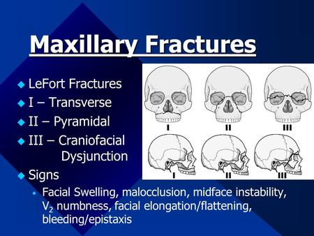 Maxillary Fractures  LeFort Fractures  I – Transverse  II – Pyramidal  III – Craniofacial Dysjunction  Signs  Facial Swelling, malocclusion, midface.