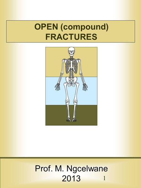 OPEN (compound) FRACTURES Prof. M. Ngcelwane 2013 1.