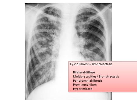 Cystic Fibrosis - Bronchiectasis Bilateral diffuse Multiple cavities / Bronchiectasis Peribronchial fibrosis Prominent hilum Hyperinflated Cystic Fibrosis.