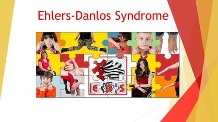 Ehlers-Danlos Syndrome. What will we be covering? What is Ehlers-Danlos syndrome Diagnosis How does this affect people day to day? Support.