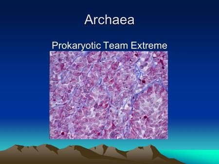 Archaea Prokaryotic Team Extreme. Introduction Archaea are prokaryotic, single- celled organisms that can live in the absence of oxygen. They are similar.