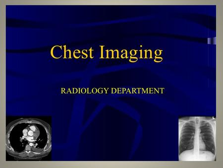 Chest Radiology. Hilar structures The hila (lung roots) are complicated structures mainly consisting of the major bronchi and the pulmonary.