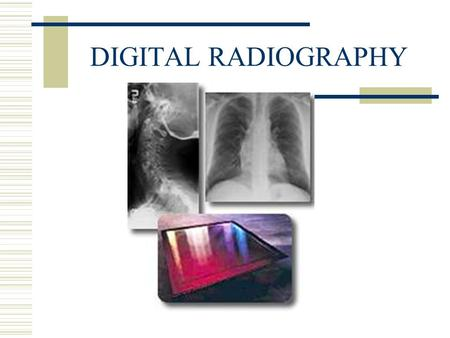 DIGITAL RADIOGRAPHY. DIGITAL PROJECTION RADIOGRAPHY DEPENDS ON COMPUTER TECHNOLOGY TO PRODUCE DIGITAL RADIOGRAPHIC IMAGE.