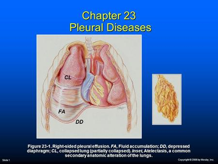 Copyright © 2006 by Mosby, Inc. Slide 1 Chapter 23 Pleural Diseases Figure 23-1. Right-sided pleural effusion. FA, Fluid accumulation; DD, depressed diaphragm;