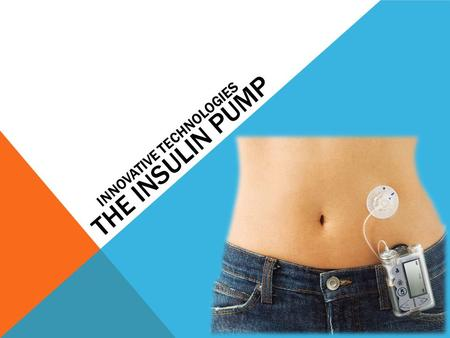 THE INSULIN PUMP INNOVATIVE TECHNOLOGIES. WHAT IS AN INSULIN PUMP? Machine delivery of insulin. Most commonly for those with Type one diabetes.