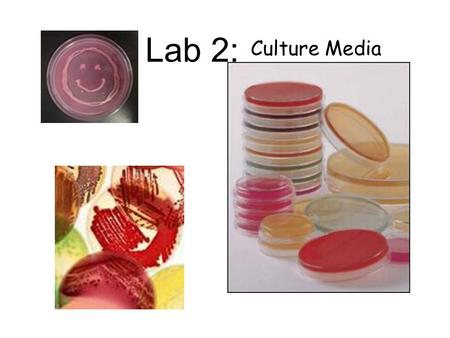 Lab 2: Culture Media. In this lab we learn about different types of media that are used to grow bacteria. Some types of media will grow just about any.