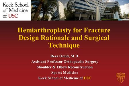 Hemiarthroplasty for Fracture Design Rationale and Surgical Technique Reza Omid, M.D. Assistant Professor Orthopaedic Surgery Shoulder & Elbow Reconstruction.