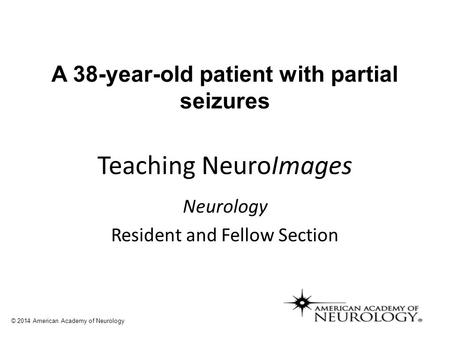 A 38-year-old patient with partial seizures Teaching NeuroImages Neurology Resident and Fellow Section © 2014 American Academy of Neurology.