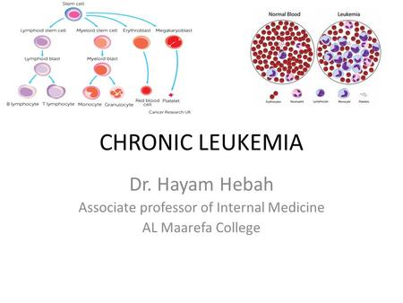 CHRONIC LEUKEMIA Dr. Hayam Hebah Associate professor of Internal Medicine AL Maarefa College.
