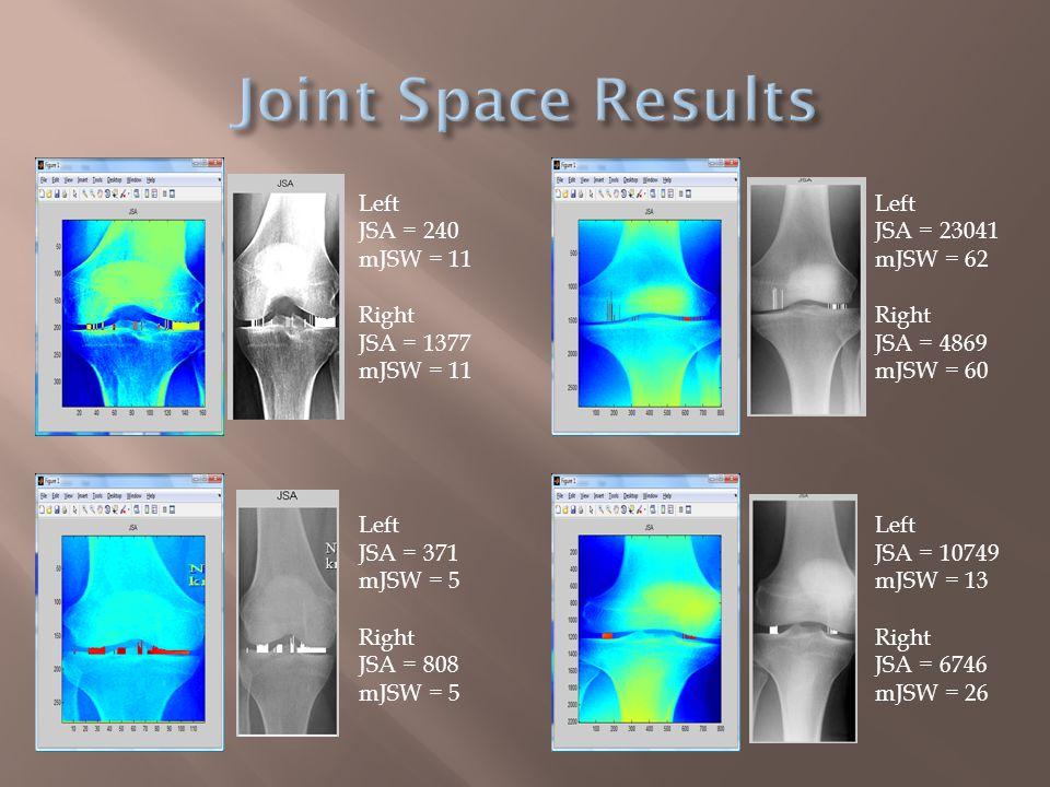  Top, results in pixels  Left  JSA = 462  min JSW = 6  Right  JSA = 154  min JSW = 7  Bottom, result in degrees  FTA (femorotibial angle) = 173.7